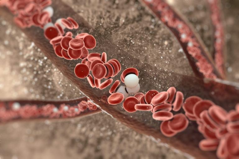 H.O.T. – Die Hämatogene Oxidations-Therapie